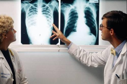 tuberculose21