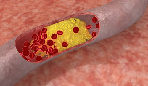 colesterol-1