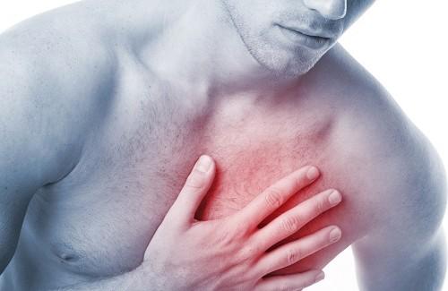 sintomas-de-infarto-500x325