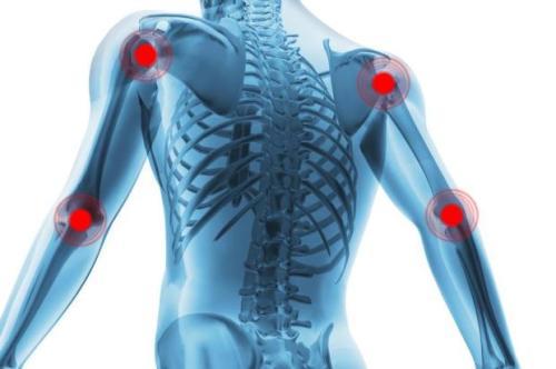 Reumatismo-nos-ossos_22620