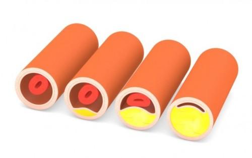 sintomas-do-colesterol-alto-620x389