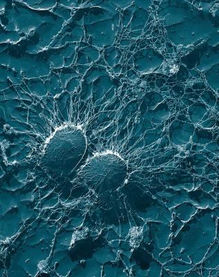 Bacterias Pixabay